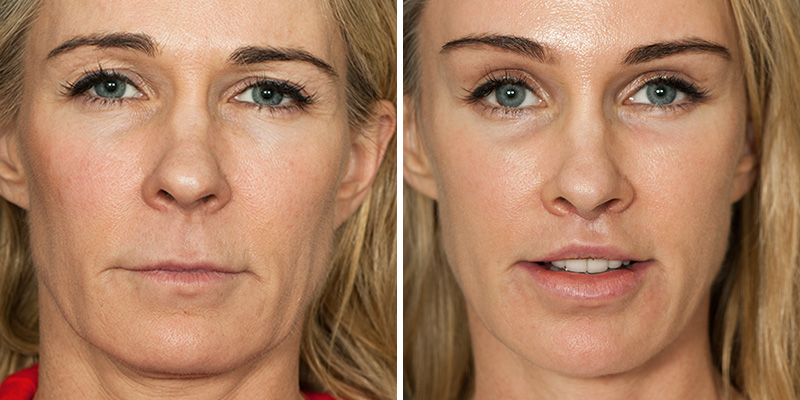 Facelift - Los Angeles, CA | Kao Plastic Surgery