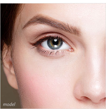 Non-Excisional Eyelid Lift