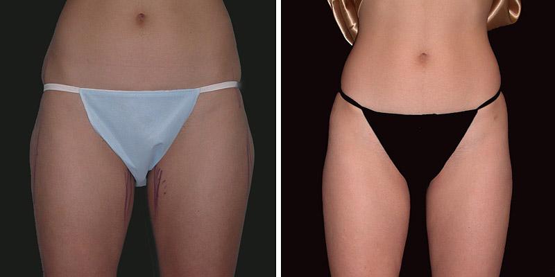 Dr. Kao Liposuction