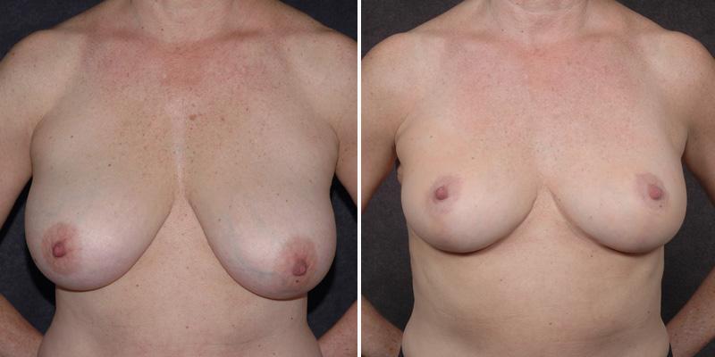 Dr. Kao Breast Lift