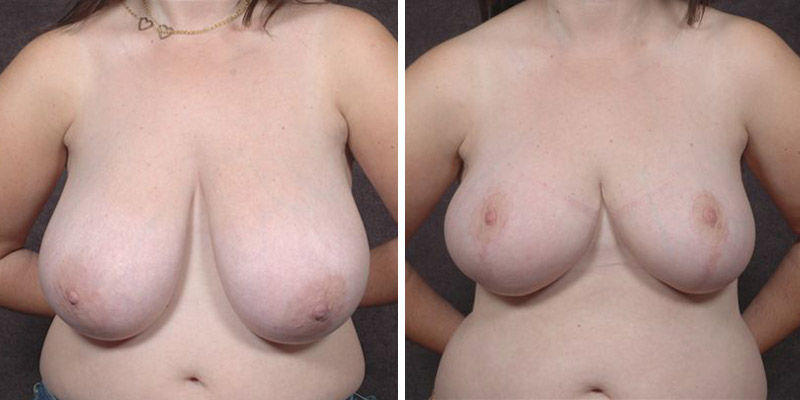 Dr. Kao Breast Reduction