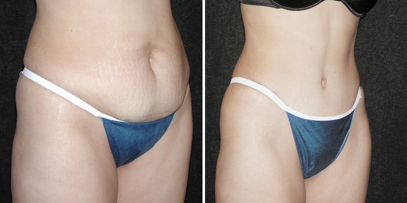Tummy Tuck - Los Angeles, CA | Kao Plastic Surgery