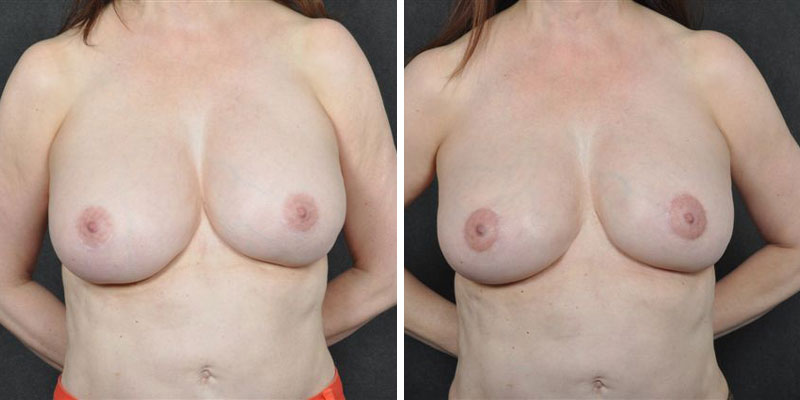 Dr. Kao Breast Implant Revision