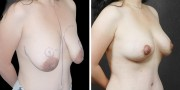 Dr. Kao Internal Bra Breast Lift (Mastopexy)