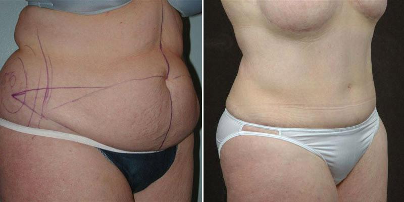 Skin Sagging After Major Weight Loss