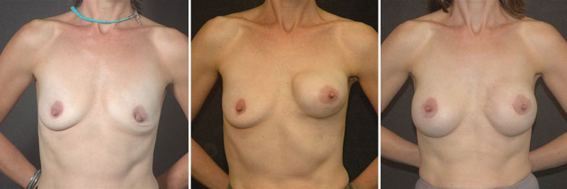Dr. Kao Breast Reconstruction