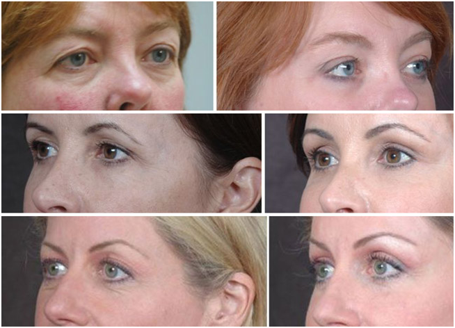 Dr. Kao - Contour Eyelift Before & After Photos