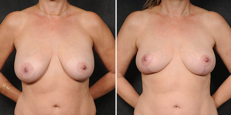 Dr. Kao Implant Removal with Breast Lift