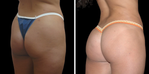Before and After Buttock Reshaping