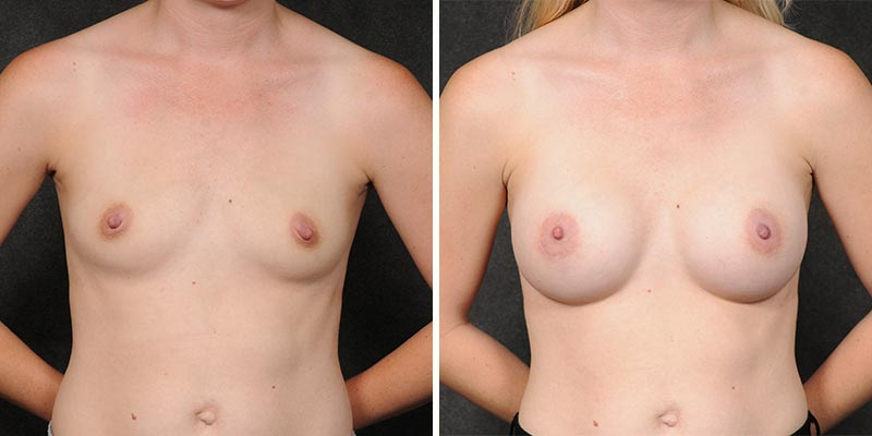 Dr. Kao Breast Augmentation