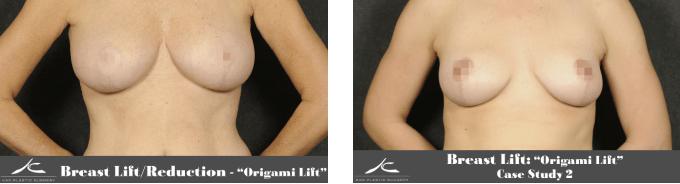 Two Origami Lift Case Studies