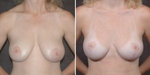 Dr. Kao Breast Lift Patient before and after photos