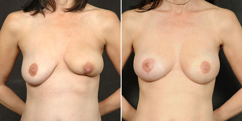 Dr. Kao Stem Cell Fat Transfer Breast Augmentation
