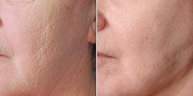 Dr. Kao Stem Cell Fat Transfer Face Procedure