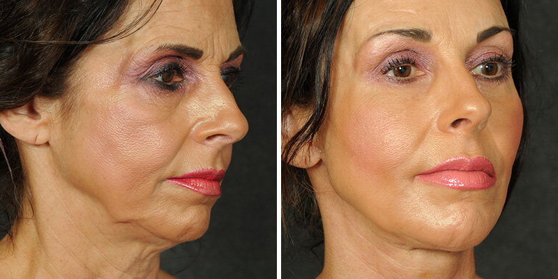 Before And After Ponytail Facelift 44 Gallery Los