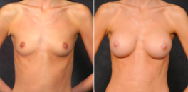 Kao Breast Augmentation Patient