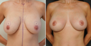 Internal Bra Mastopexy