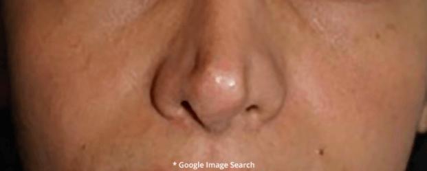 Nasal Tip