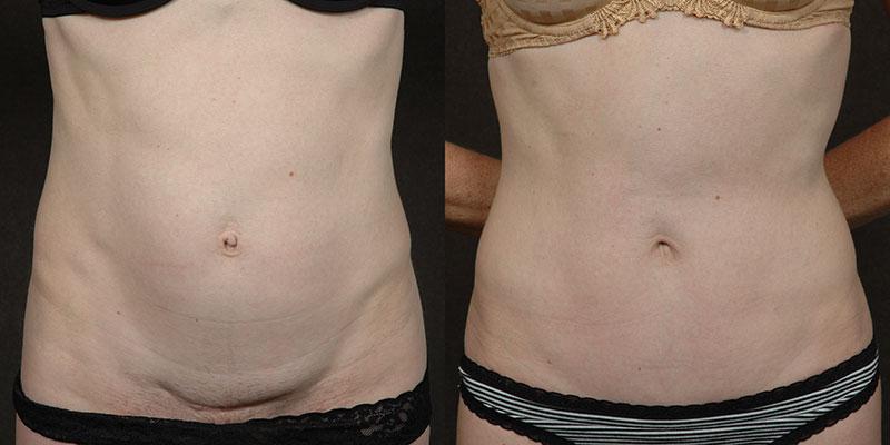 Skinny Bikini Tuck™ Technique Actual Patient